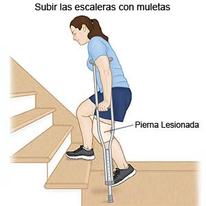 Going Upstairs with Crutches