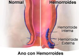 Picture of the anus with internal and external hemorrhoids