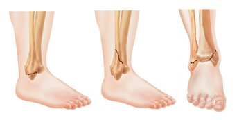 Ankle Fracture Guide: Causes, Symptoms and Treatment Options
