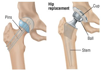 Hip Fracture Guide: Causes, Symptoms and Treatment Options