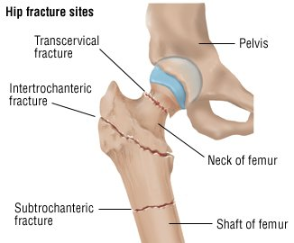 Leg Fracture Guide: Causes, Symptoms and Treatment Options