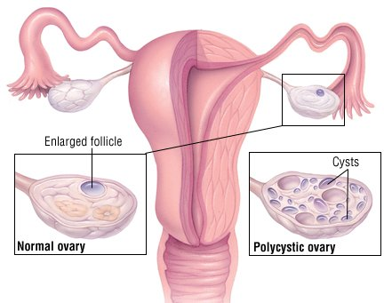 Polycystic Ovary Syndrome Guide: Causes, Symptoms and
