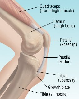 Osgood-Schlatter Disease Guide: Causes, Symptoms and