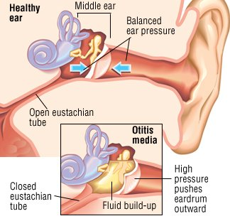 Image result for Otitis Media