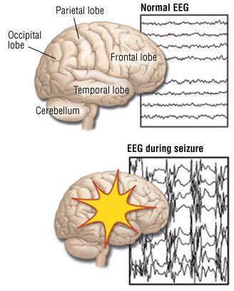 partial seizures (focal seizures) guide: causes, symptoms and, Skeleton