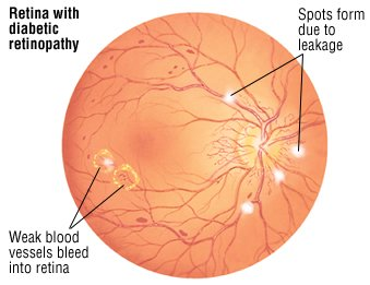 the vitreous is the clear gel between the lens and the retina sudden