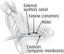 Wax Blockage Of The Ear Canal Guide: Causes, Symptoms and Treatment