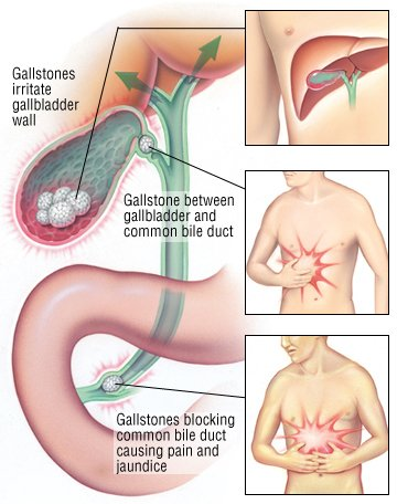 gallstones guide: causes, symptoms and treatment options, Cephalic Vein