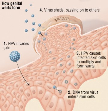Having genital herpes is not associated with causing cervical cancer 2