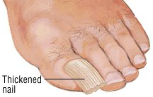 Nail Trauma Guide Causes Symptoms And Treatment Options