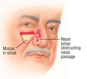 Nasal Polyps Guide Causes Symptoms And Treatment Options