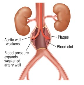 abdominal aortic aneurysm guide: causes, symptoms and treatment, Human Body