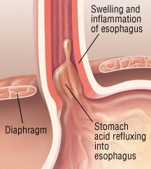Esophagitis Guide: Causes, Symptoms and Treatment Options