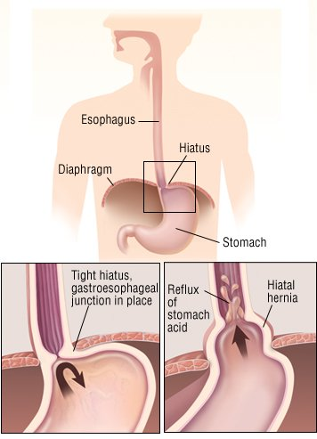 hiatal hernia guide: causes, symptoms and treatment options, Cephalic Vein