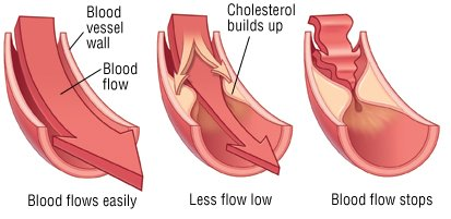 of in Symptoms high adults cholesterol