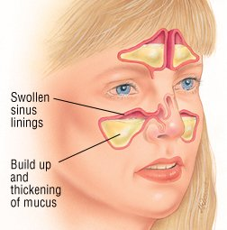 Facial pain caused by cold fluid