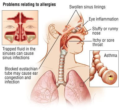 hay fever (allergic rhinitis) guide: causes, symptoms and, Skeleton