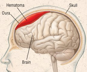 Race car drivers death: subdural hematoma as a cause