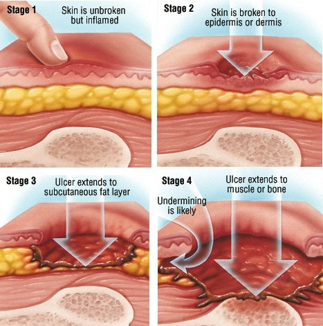 Bedsores (Decubitus Ulcers) Guide: Causes, Symptoms and ...