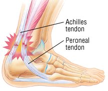 tendonitis guide: causes, symptoms and treatment options, Cephalic Vein