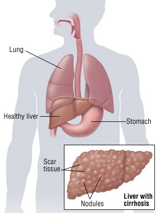 cirrhosis guide: causes, symptoms and treatment options, Human Body