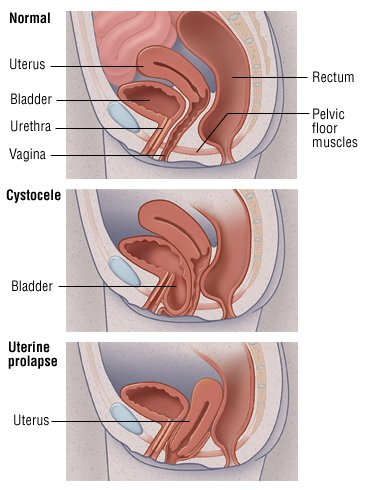 Mild cases of bladder or uterine prolapse usually don't cause any ...