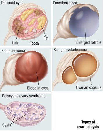 cysts guide causes symptoms and treatment options