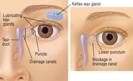 Tear Duct Image