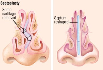 Deviated Septum Guide Causes Symptoms And Treatment Options