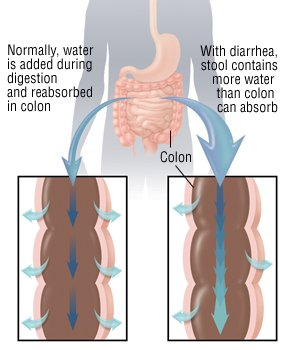 Diarrhea Guide Causes Symptoms And Treatment Options