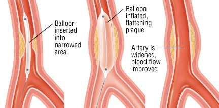 angioplasty guide drugs com