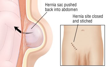 Laparoscopic Inguinal Hernia Repair - Michigan