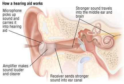 Hearing Loss in Adults Guide: Causes, Symptoms and ...