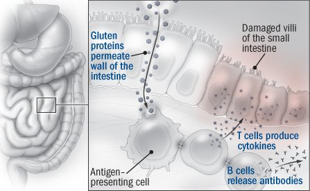 celiac disease symptoms causes and effects Celiac disease information including symptoms, diagnosis, misdiagnosis, treatment, causes, patient stories, videos, forums, prevention, and prognosis.