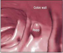 Colon Polyps Guide Causes Symptoms And Treatment Options