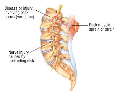 Back Pain Guide Causes Symptoms And Treatment Options