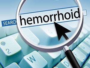 Hemorrhoids: A Common Ailment with Frequent Questions
