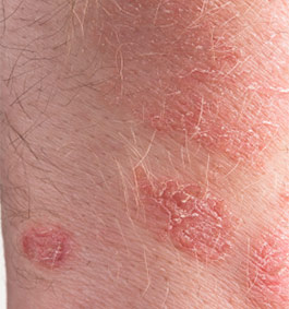 Psoriasis Treatment Options To Manage Your Symptoms And Skin