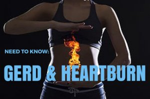 Need to Know: GERD and Heartburn