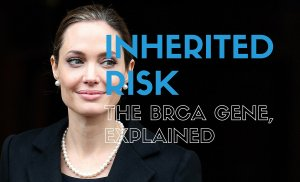 Inherited Risk: The BRCA Gene Explained