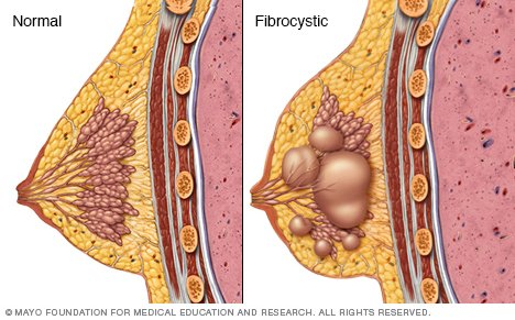 fibrocystic disease of the breast jpg 1200x900