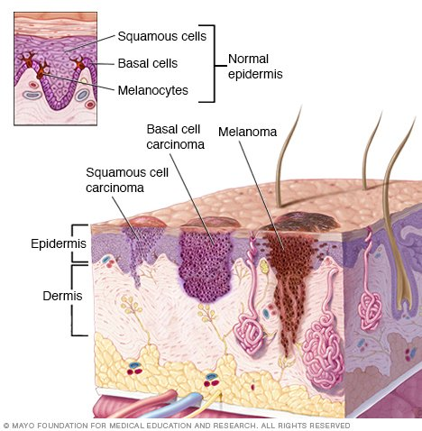 basal cell carcinoma disease reference guide. Black Bedroom Furniture Sets. Home Design Ideas