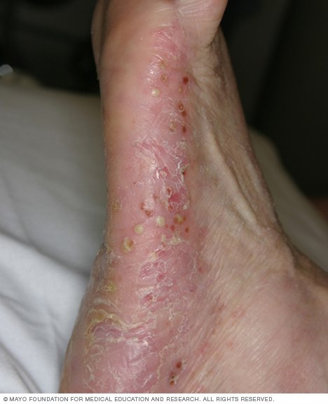 Q: Is risk for skin infections higher in people with psoriasis than in people who don't have psoriasis 1