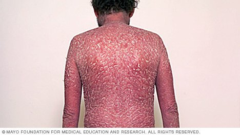 Guttate psoriasis symptoms can be severe and lead to fatality if left untreated 2