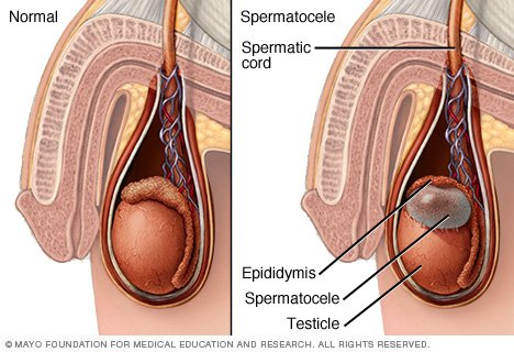 is testicular shrinkage from steroids permanent