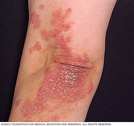 (Psoriatic): This is a tar like substance that is used to treat psoriasis 2