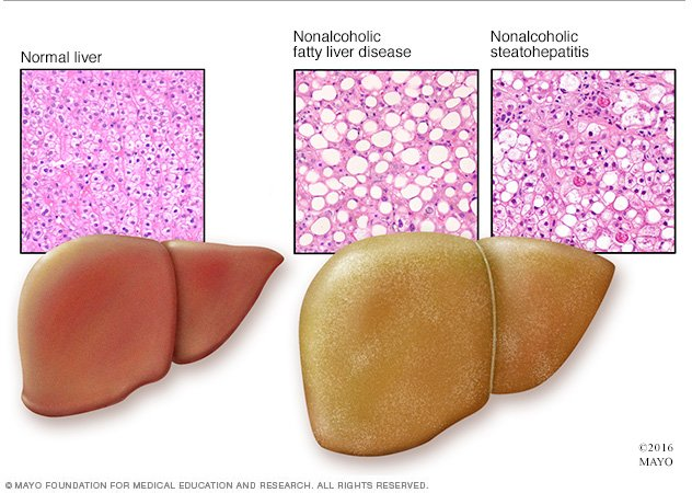 nonalcoholic fatty liver disease disease reference guide