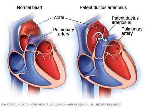 265 Coarctation of the Aorta  FRCA