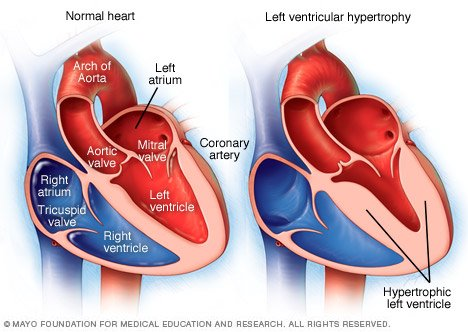 Left ventricular hypertrophy Disease Reference Guide