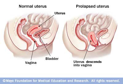 women guide vaginal prolapse